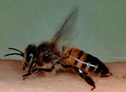 Bienenstich auf Haut